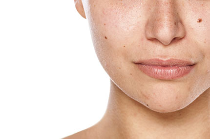 Skin Discoloration & Dark Spots | SkinCeuticals